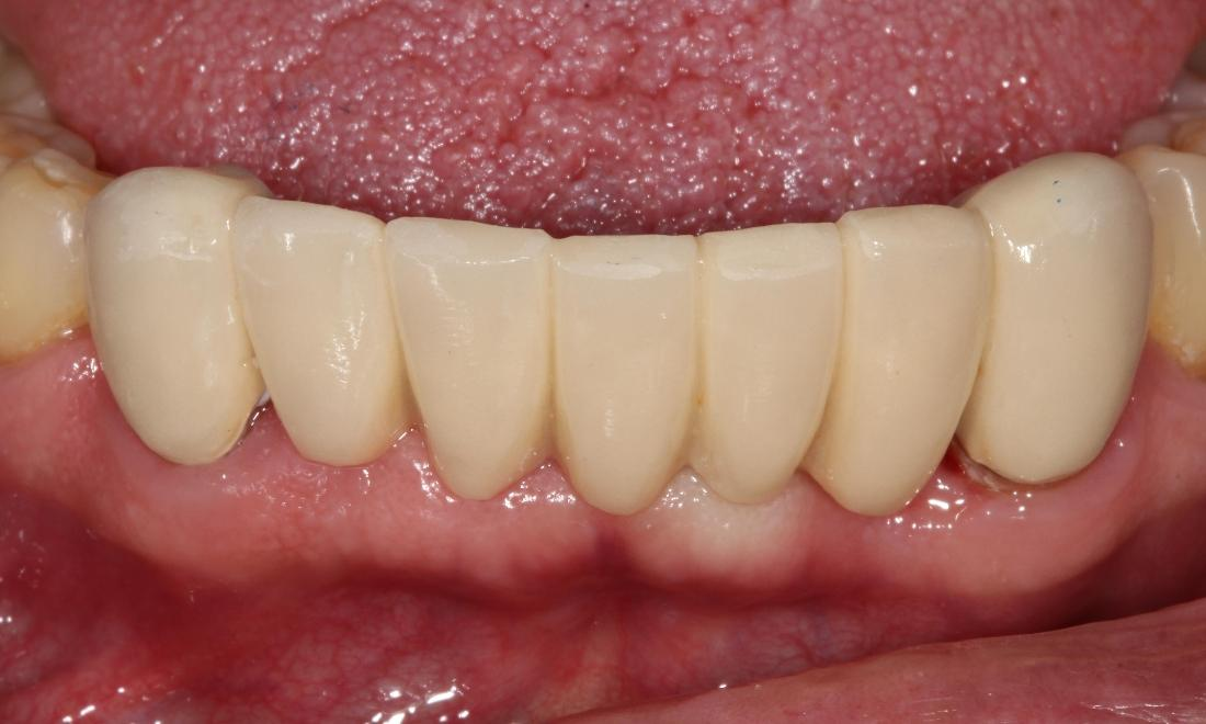 Periodontal disease, extractions, bridge and tooth replacement