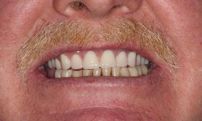Custom-Upper-Denture-After-Image