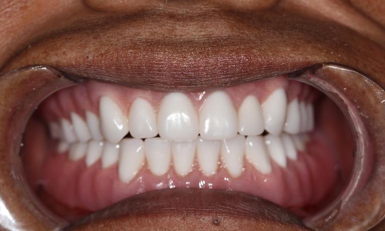 Custom-Denture-After-Image