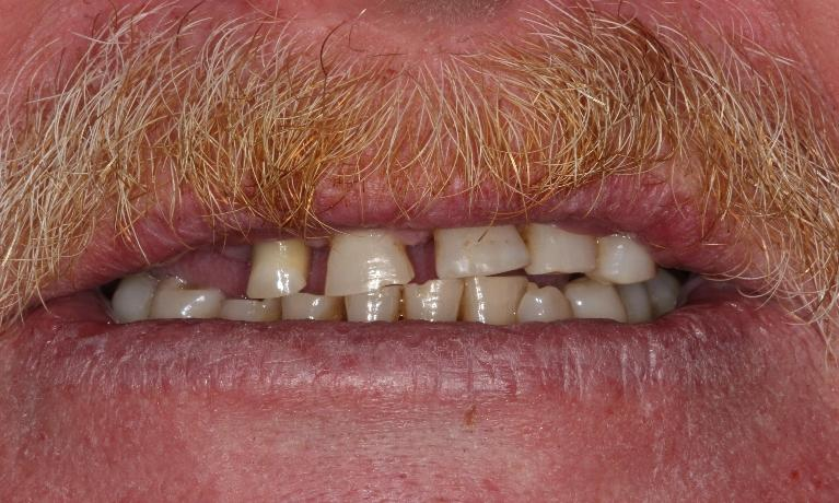 Custom-Upper-Denture-Before-Image