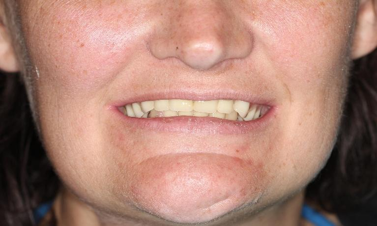 Custom-Dentures-Before-Image