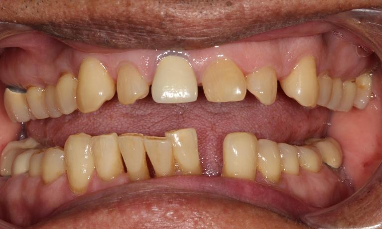 Periodontal-disease-extractions-bridge-and-tooth-replacement-Before-Image