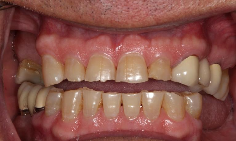 Ceramic-Crowns-Before-Image