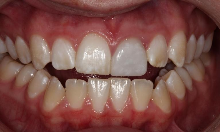 Ceramic-Veneers-Before-Image