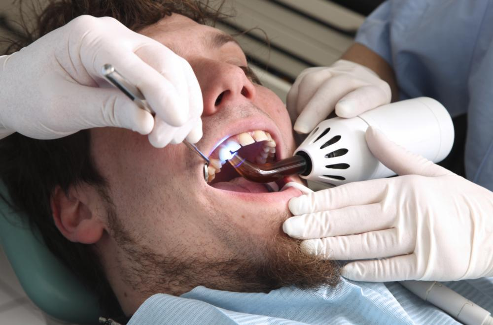 dental fillings in farmington nm