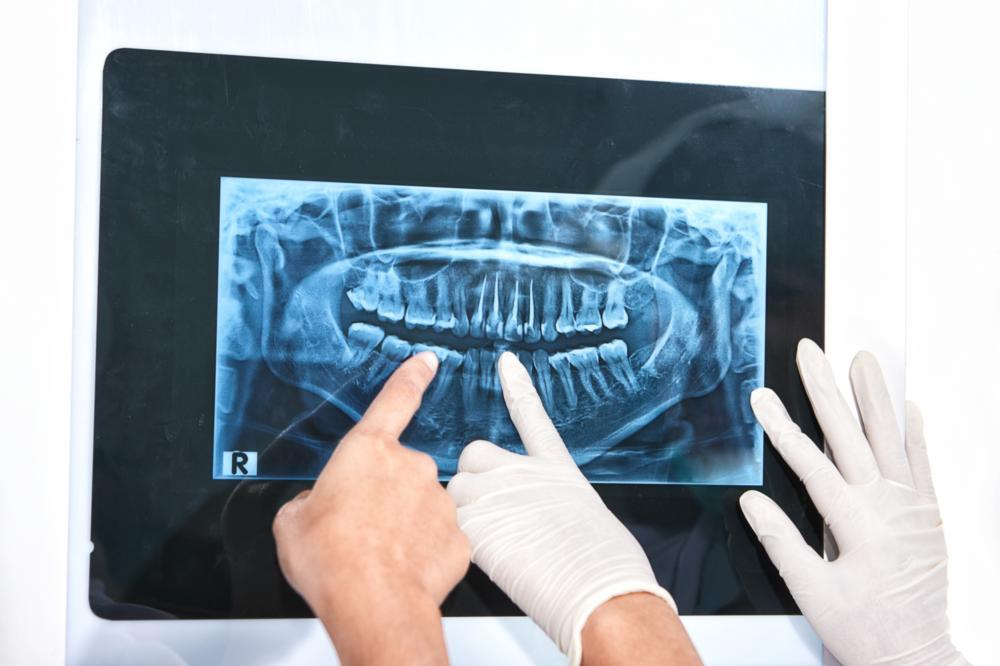 X-Rays at My Dental Appointment | Lusk Family Dentistry