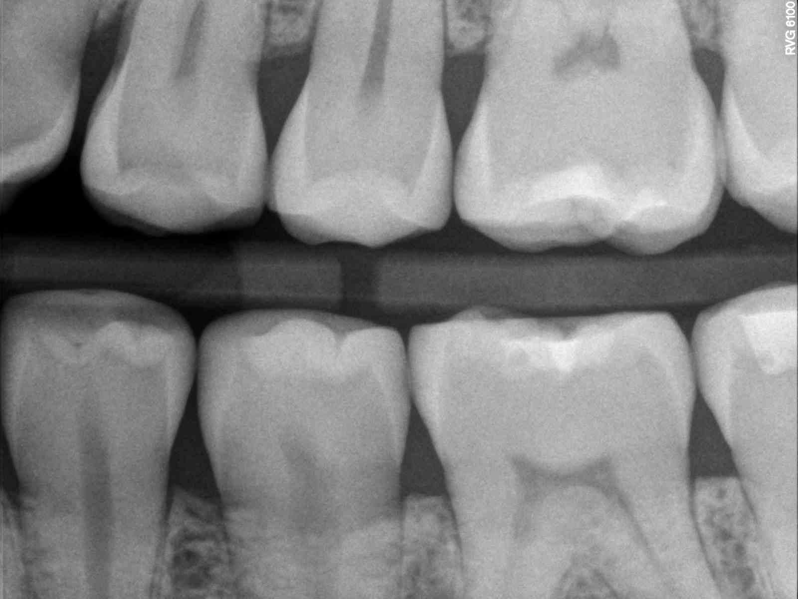 Digital Radiographs | Lusk Family Dentistry