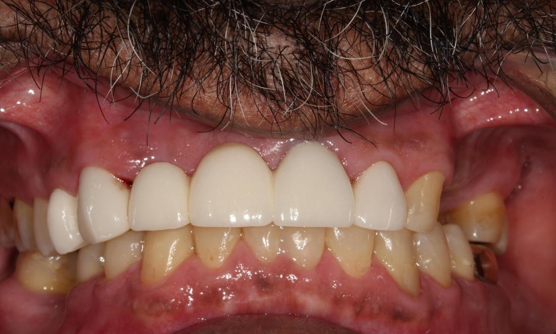 dental bridges | covering chipped and broken teeth farmington nm