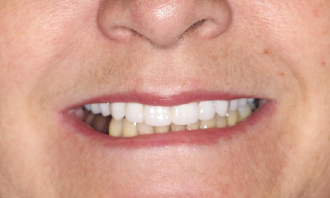 image of a smile fixed by dentures