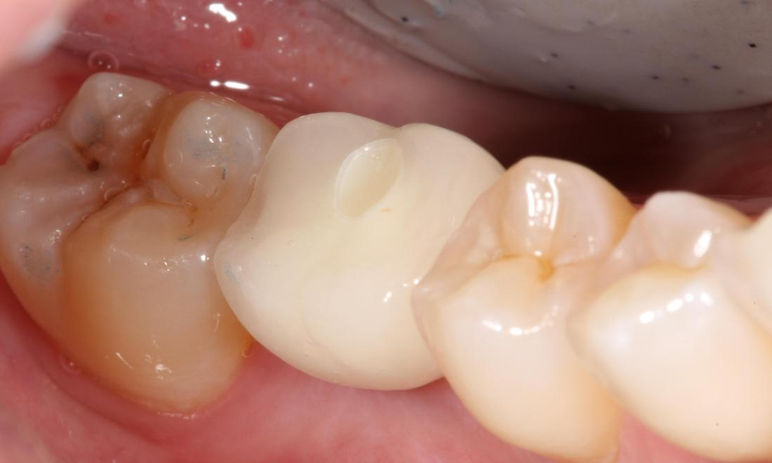 after dental crown is placed | dental implant farmington nm