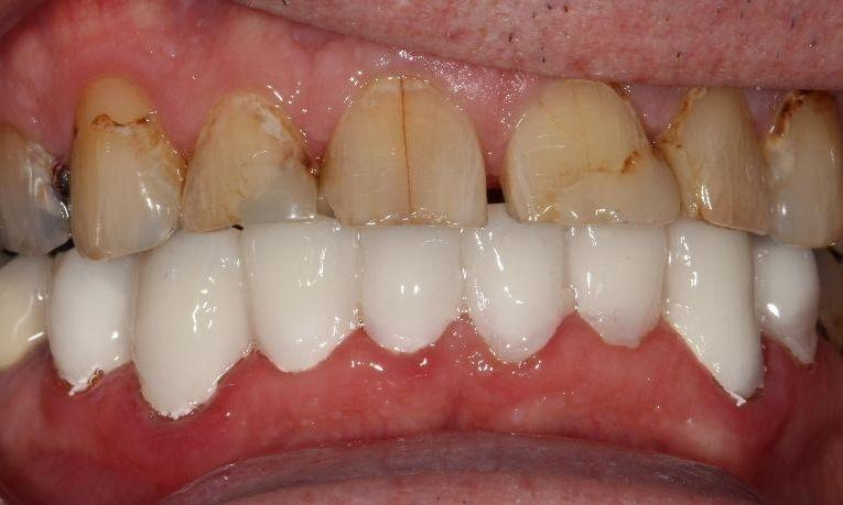 after picture ceramic crowns farmington nm