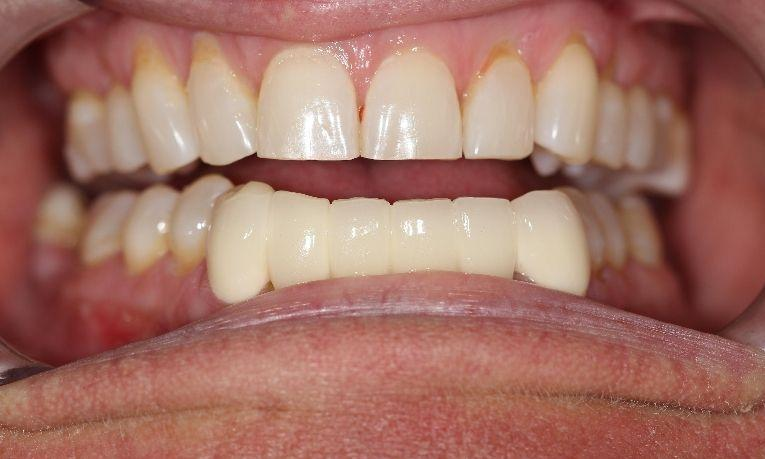after dental bridge farmington nm