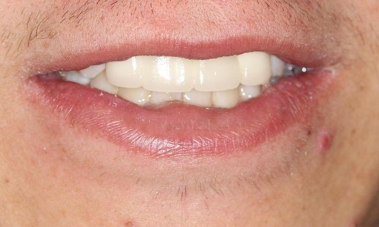 after fixed bridge | dental bridges farmington nm