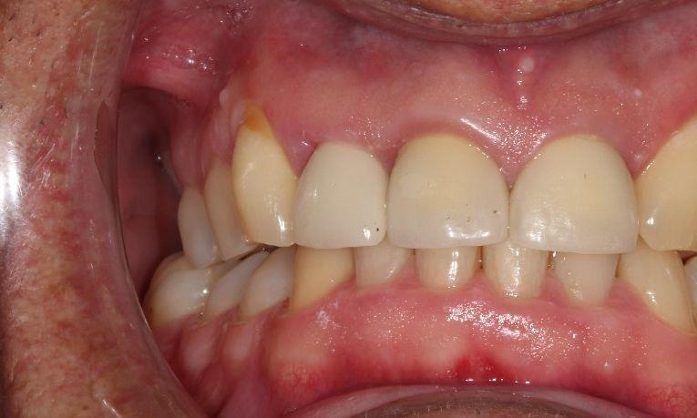 after ceramic crown | dental crowns farmington nm