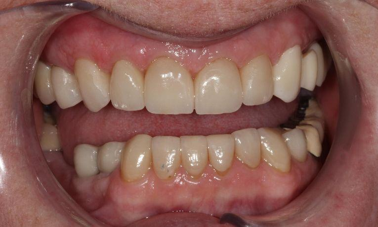 after image of patients smile | dental crowns farmington nm