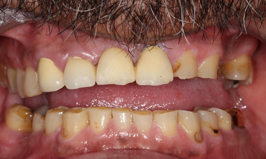 dental bridges | cover chipped broken teeth farmington nm