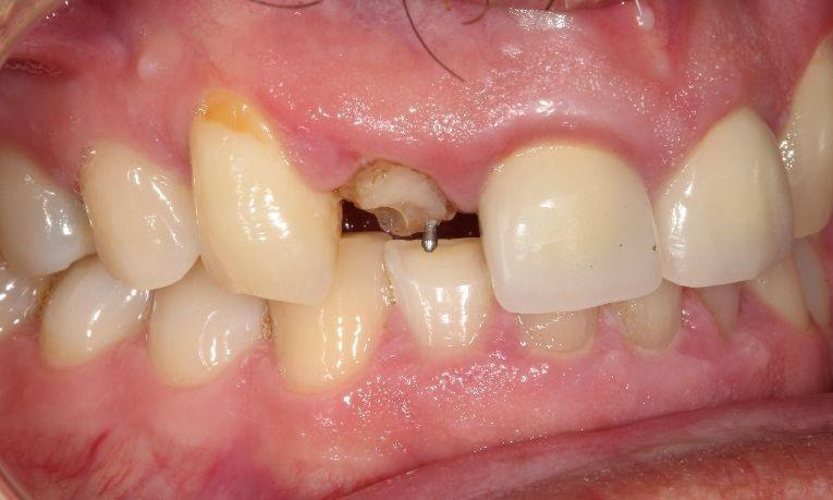 before ceramic crown | dental crowns farmington nm