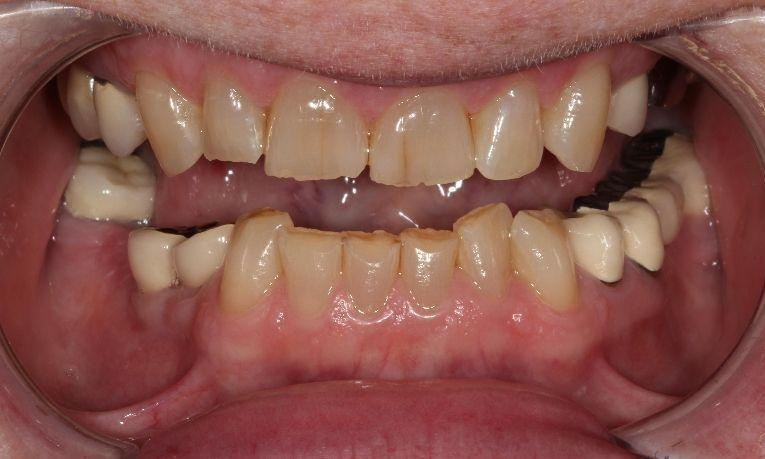 before image of patients smile | ceramic crowns farmington nm