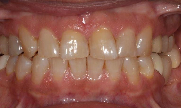misshapen teeth before ceramic veneers | dental veneers farmington nm