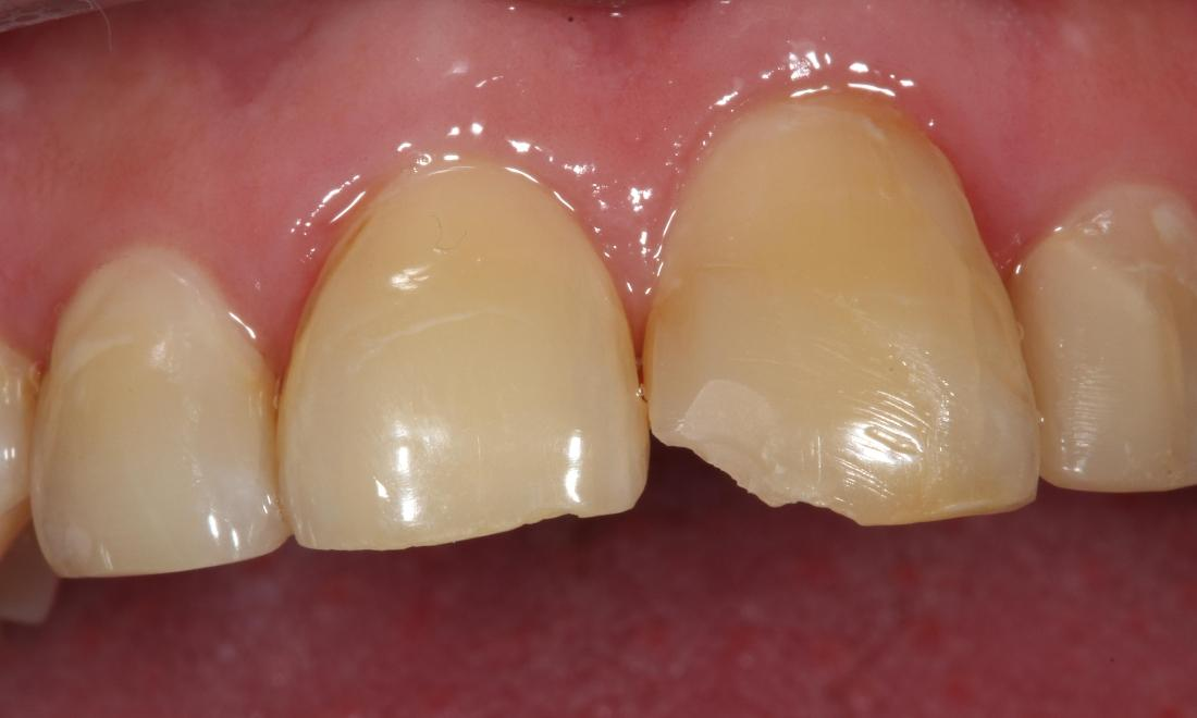 chipped tooth | before dental bonding farmington nm
