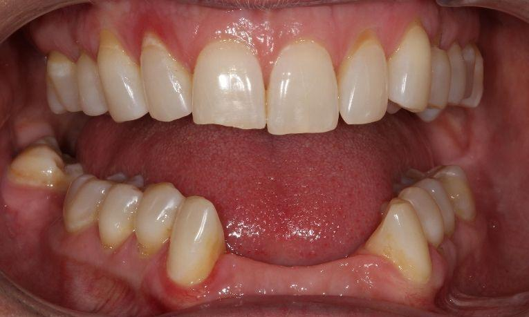 before dental bridge