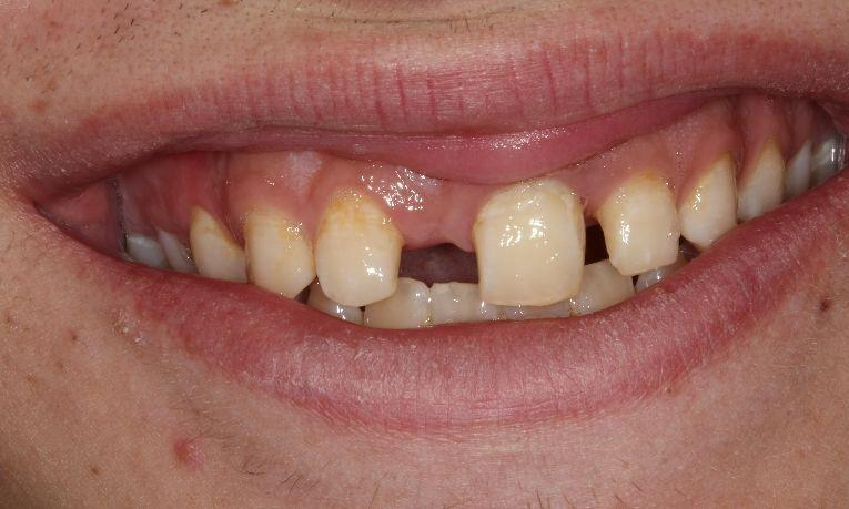 before fixed bridge | dental bridges farmington nm