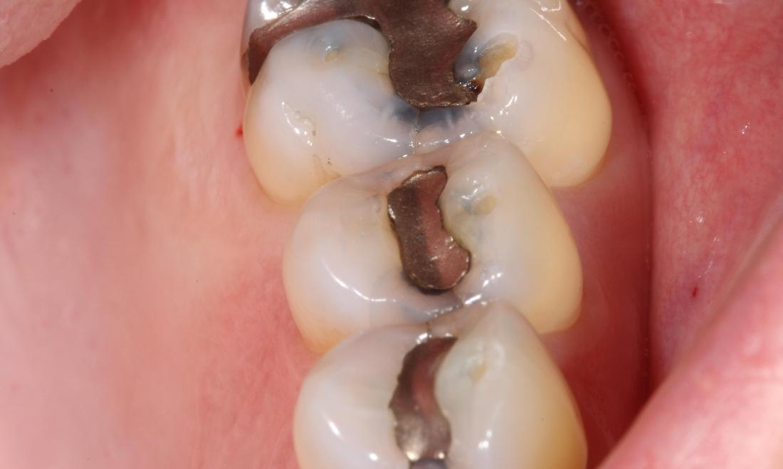metal fillings before | composite filling farmington nm