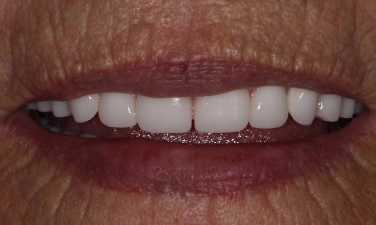 after fitted custom dentures | fitted dentures farmington nm