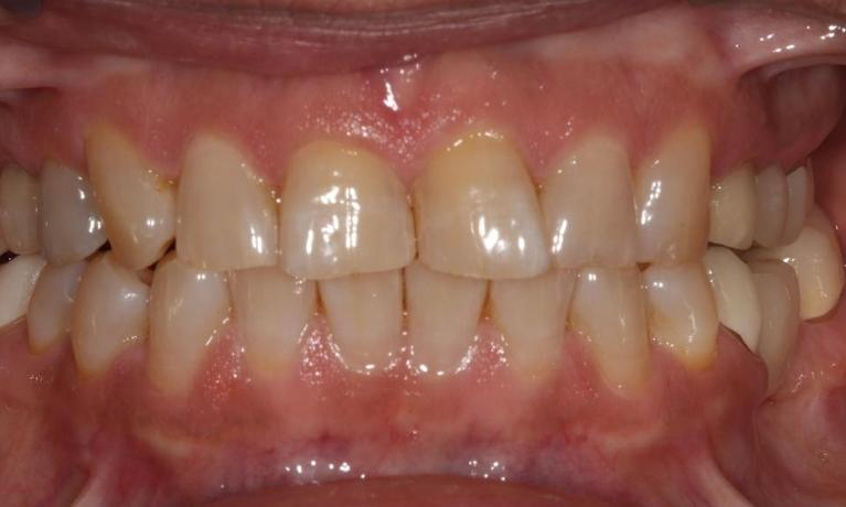 farmington nm dentist smile gallery cosmetic smile
